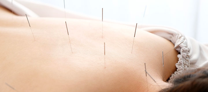 鍼灸治療、美容鍼